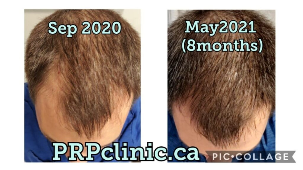 Before and After PRP Hair Treatments